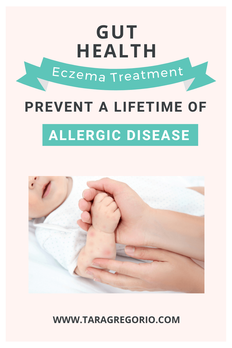Gut Health Eczema Treatment: Prevent a lifetime of allergic disease